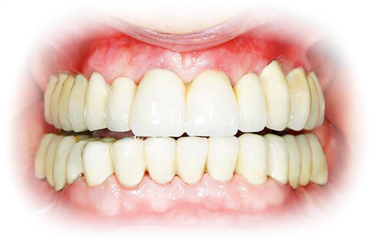 Tandenservice bij tandarts