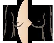 Kliniek Veldhoven borstvergroting